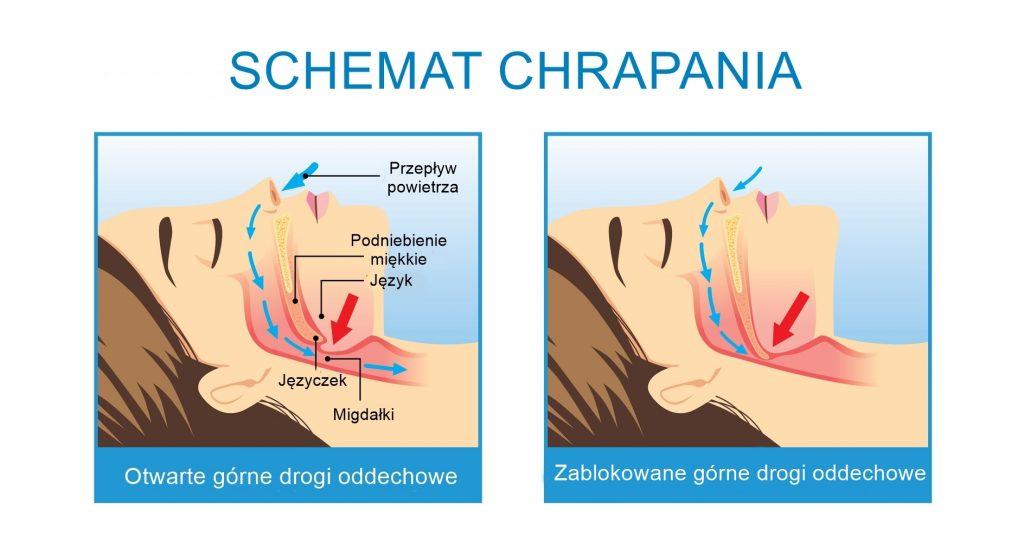 leczenie chrapania