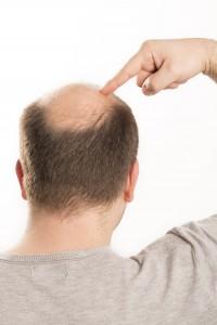 wypadanie włosów, łysienie, preparat HairCare, problem łysienia, mezoterapia