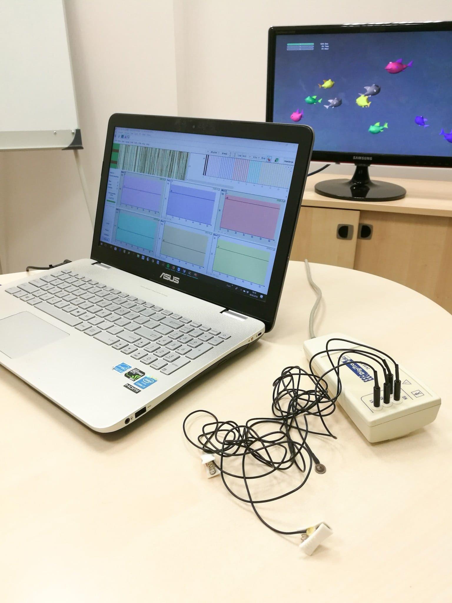 Nowość w Olimedica- EEG Biofeedback