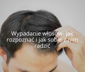 Problemy skóry głowy i włosów