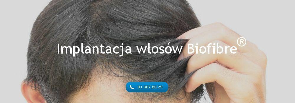implantacja włosów